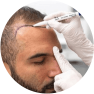 Advanced Hair Transplant